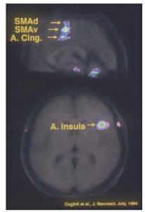 Figure 3 : Régions cérébrales présentant une augmentation du flot sanguin durant l'application d'un stimulus douloureux.
