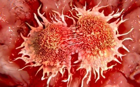 Huiles essentielles et cancers